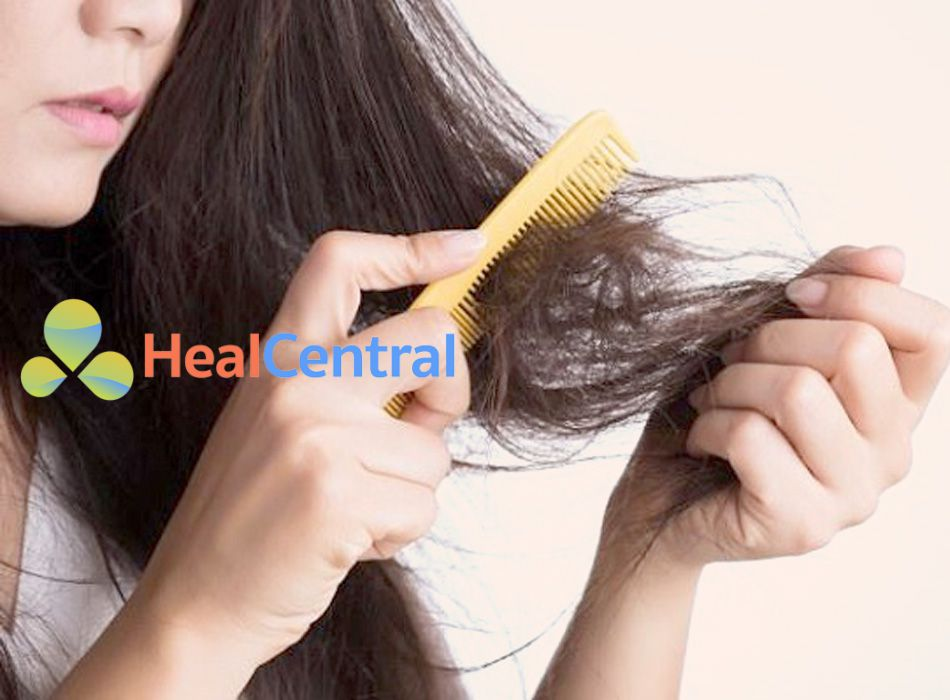 Brexin có thể gây ra tình trạng rụng tóc cho người sử dụng thuốc