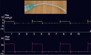 Thành phần sức cản của biểu đồ sóng áp lực