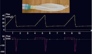 Thành phần đàn hồi của biểu đồ sóng áp lực