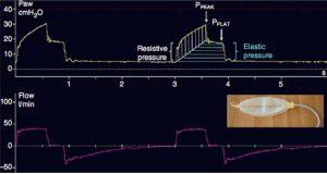 Biểu đồ sóng áp lực cho mô hình RC
