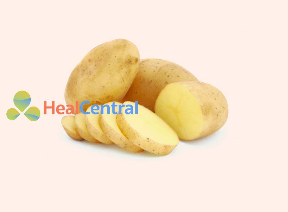 Làm mờ sẹo tại nhà đơn giản với khoai tây