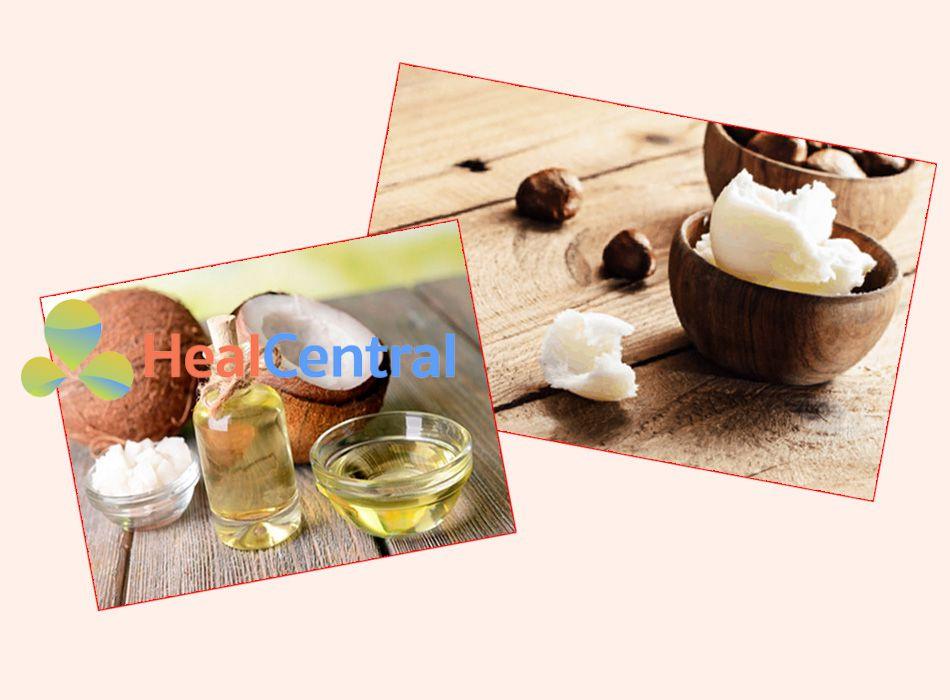 Cách làm mờ sẹo tại nhà với bơ hạt mỡ và dầu dừa
