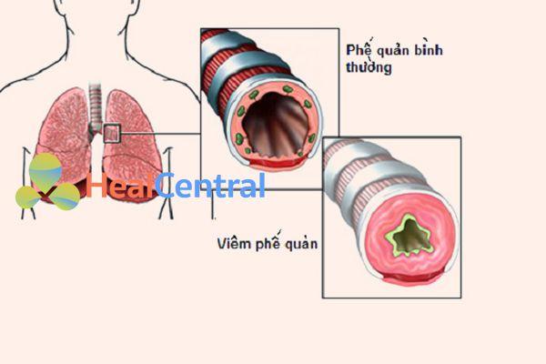 Lưu ý khi sử dụng rau diếp cá chữa viêm phế quản