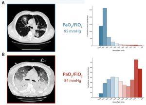 Bảng A: CT scan thu được trong quá trình thở tự nhiên. Bảng B: CT thu được khi thở máy với PEEP ở mức 5 cmH2O.