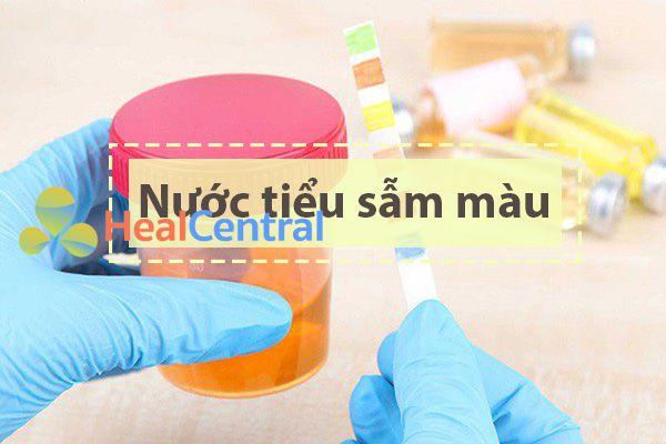 Tác dụng không mong muốn trên tiết niệu của thuốc Flagyl