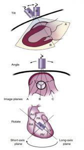 Hình 2-2 Động tác của đầu dò.