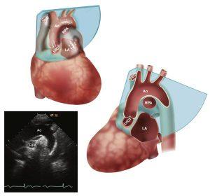 Hình 2-20 Mặt cắt trên hõm ức. Vị trí của mặt cắt này được chỉ ra ở hình tim 3D ở trên, tương ứng với hình ảnh siêu âm 2D ở dưới. Mặt cắt 2D cho thấy động mạch chủ lên, quai và đoạn gần của động mạch chủ ngực với đoạn phân nhánh ra động mạch cảnh trái và động mạch dưới đòn trái. Động mạch phổi phải (nằm ngay ở dưới quai động mạch chủ), với nhĩ trái và van động mạch chủ cũng đôi khi được nhìn thấy ở cửa sổ này.