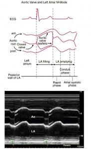 Hình 2-21 Ghi M-Mode tại van động mạch chủ. Sơ đồ (phía trên) và hình ảnh M-Mode (phía dưới) của van động mạch chủ, nhĩ trái và động mạch chủ lên ở người bình thường.