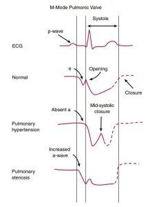 Hình 2-24 Hình dạng chuyển động của van động mạch phổi.
