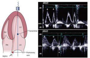 Hình 2-29 Tín hiệu vận tốc tĩnh mạch phổi và đường về thất trái bình thường.
