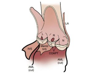 Hình 2-5 Giải phẫu van động mạch chủ.