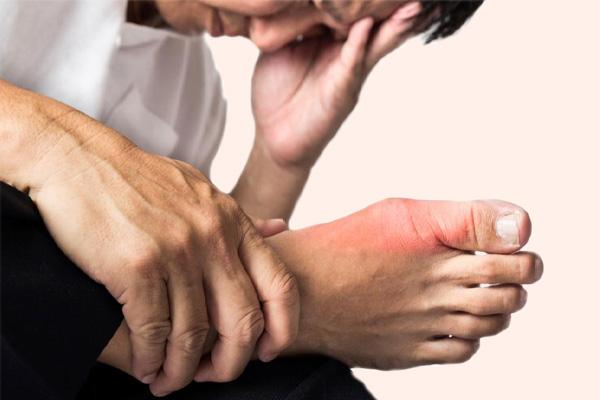Hoàng Thống Phong hỗ trợ điều trị cho những bệnh nhân gout cấp và mạn tính
