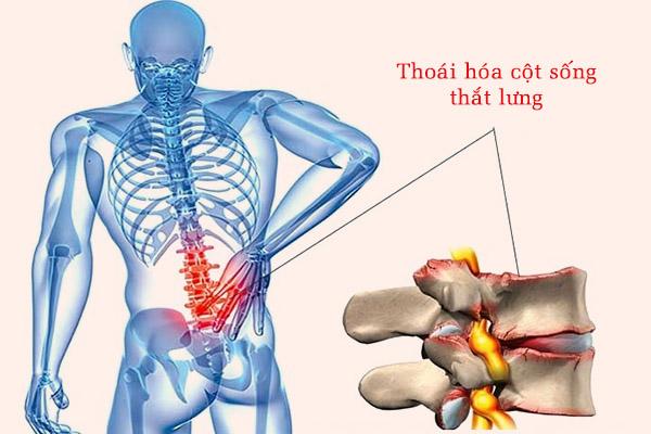Thoái hóa cột sống thắt lưng có thể gây chèn ép rễ thần kinh