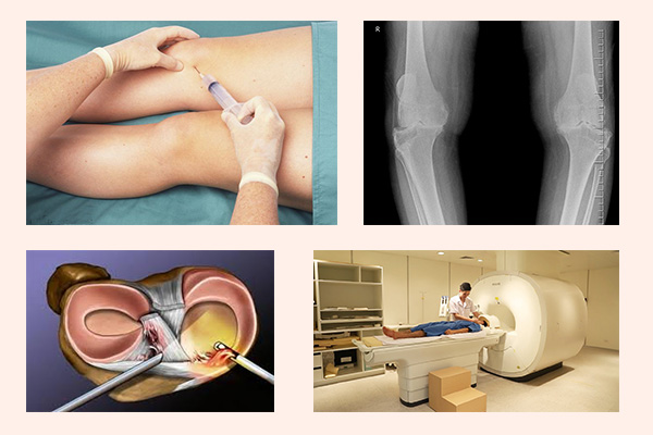 Các phương pháp chẩn đoán thoái hóa khớp điển hình