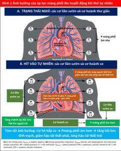 Hình 1 Ảnh hưởng của áp lực màng phổi lên huyết động khi thở tự nhiên