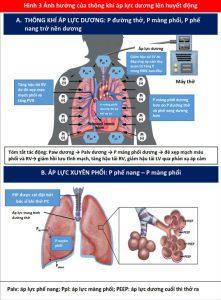 Hình 3 Ảnh hưởng của thông khí áp lực dương lên huyết động