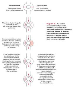 Hình 2: AVNRT đòi hỏi phải có 2 con đường bên trong nút nhĩ thất. Đấy là đường dẫn truyền chậm có thời gian phục hồi nhanh và đường dẫn truyền nhanh có thời gian hồi phục chậm.