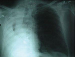 """Hình 1. Xẹp phổi toàn bộ do bệnh lý tắc nghẽn gây ra hiện tượng """"trắng"""" ở bên phải. Lưu ý khí quản được kéo về phía phổi xẹp."""