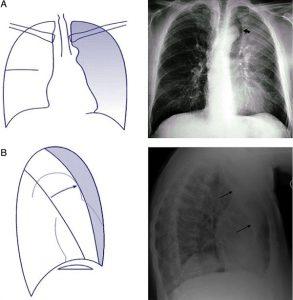 Hình 6. (A) xẹp LUL (hình sau-trước). Có một hình mờ giống như màn che trên trường phổi trái với dấu hiệu Luftsichel (mũi tên), và khí quản bị lệch sang trái, đôi khi có rốn phổi trái nâng cao. (B) xẹp LUL (nghiêng bên). Có hình mờ với đường viền sau rõ nét do sự dịch chuyển ra phía trước của rãnh liên thùy lớn (mũi tên).