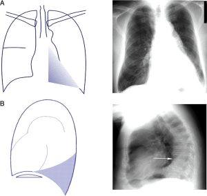 Hình 7. (A) Xẹp LLL (hình trước sau). Có một vết mờ hình tam giác có thể nhìn thấy qua tim, với sự mất đi đường viền giữa của cơ hoành. (B) Xẹp LLL (hình nghiêng bên). Tăng hình mờ sau tim, với sự dịch chuyển xuống của rãnh liên thùy.