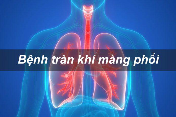 Bệnh tràn khí màng phổi