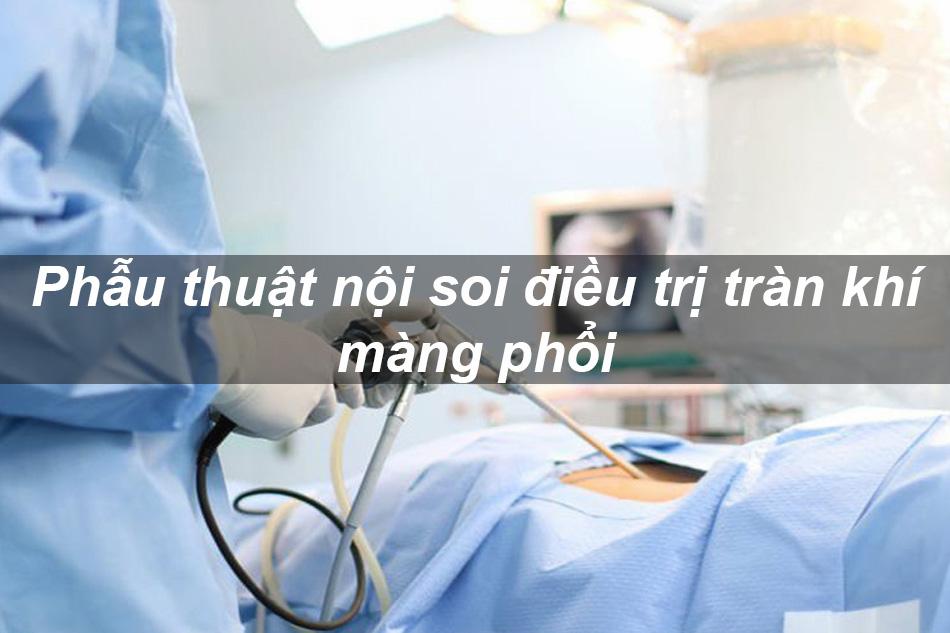 Phẫu thuật nội soi điều trị tràn khí màng phổi