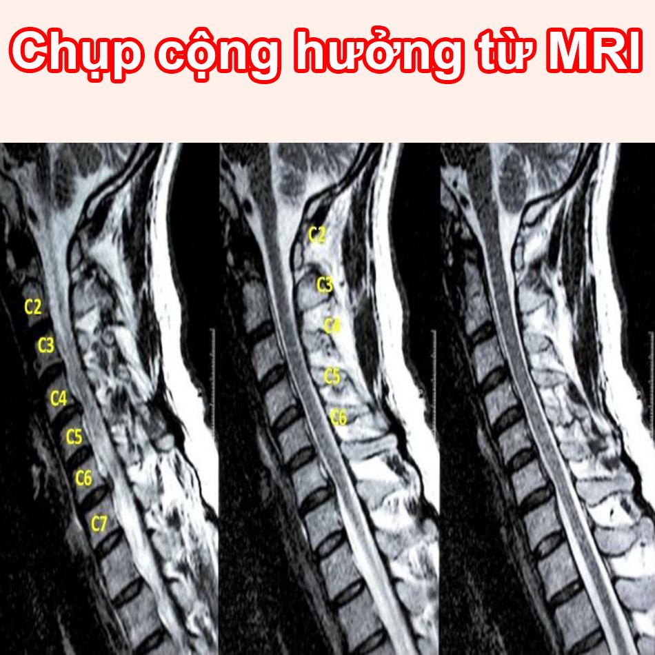 Hình ảnh chụp cộng hưởng từ MRI thoái hóa đốt sống cổ