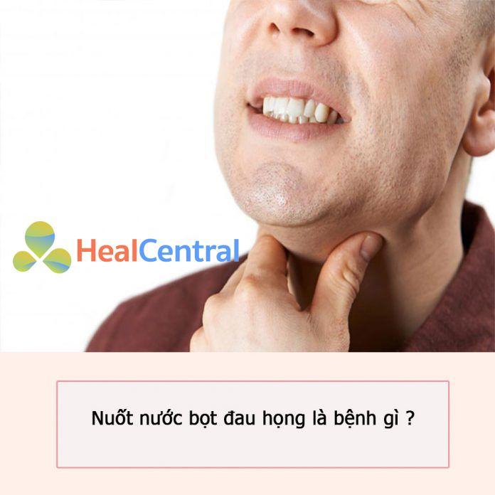 Nuốt nước bọt đau họng là bệnh gì?