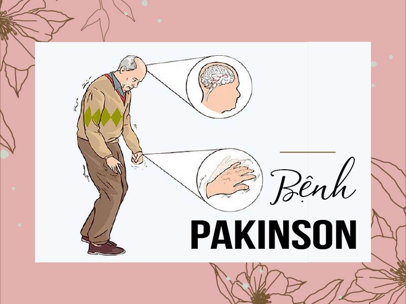 Bệnh Parkinson là gì? Nguyên nhân, triệu chứng và cách điều trị hiệu quả
