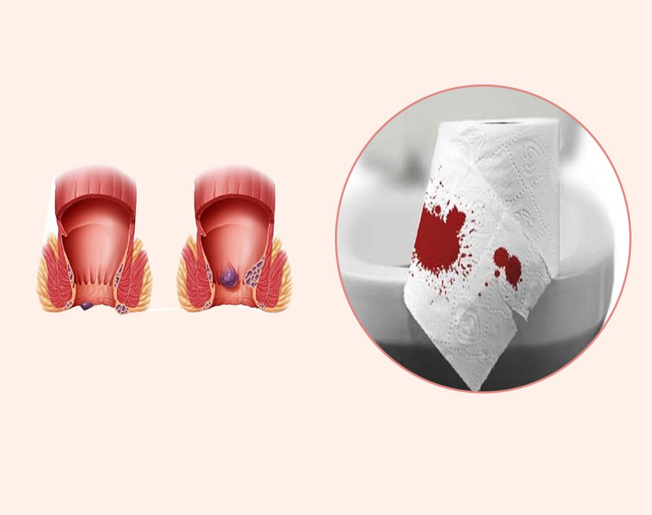 Bệnh trĩ gây đi ngoài ra máu