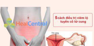 5 cách điều trị viêm lộ tuyến cổ tử cung
