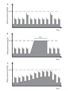 Hình 1 Các loại thủ thuật huy động phế nang. Thủ thuật thở sâu (a), thủ thuật bơm phồng và giữ (b), và thay đổi PEEP từng bậc thang (c)
