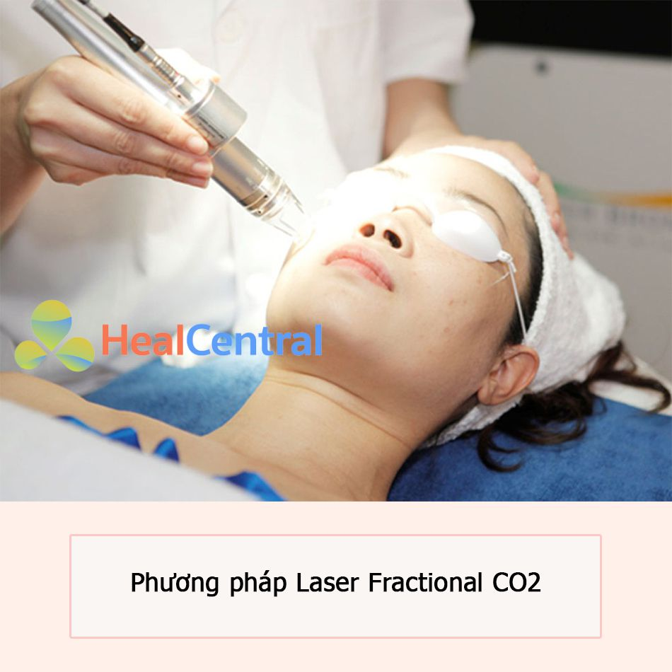 Điều trị sẹo rỗ với phương pháp Laser Fractional CO2