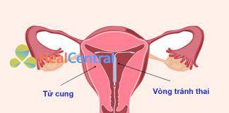 Đặt vòng tránh thai