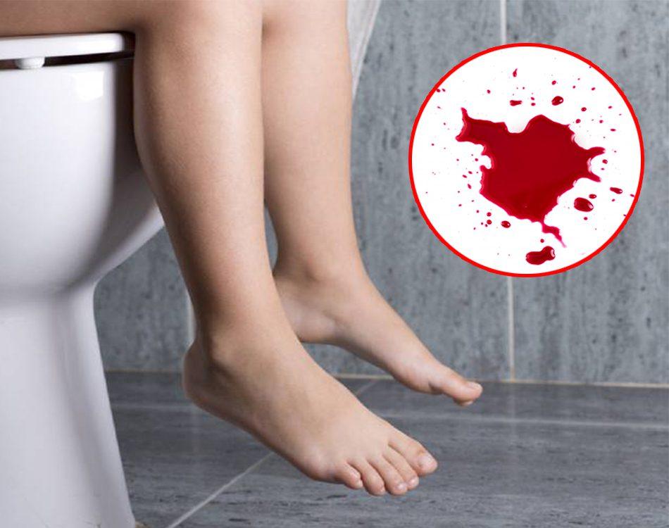 Đi ngoài ra máu tươi là bệnh gì?