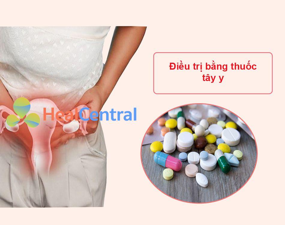 Điều trị viêm lộ tuyến cổ tử cung bằng thuốc tây y