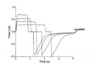 Hình 1. Dạng sóng lưu lượng cho thấy bẫy khí bằng cách giảm lưu lượng ở thể tích khí lưu thông bằng nhau. Giảm dần thời gian thở ra tạo ra PEEP nội sinh khi thời gian thở ra trở nên không đủ dài để thở ra tất cả các thể tích khí lưu thông trước đó.