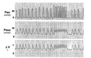 Hình 3. Áp lực đường thở (PAO), áp lực thực quản (Peso) và dạng sóng thể tích phổi trong một động vật thí nghiệm nhận thông khí (bóp bóng) trong quá trình hồi sức tim phổi. Trong quá trình bóp bóng nhanh, thời gian thở ra ngắn hơn và thể tích phổi và áp lực trong lồng ngực cao hơn. ΔV = thay đổi thể tích.