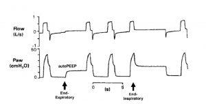 Hình 4. Dạng sóng của lưu lượng và áp lực đường thở (Paw) từ một bệnh nhân mắc bệnh phổi tắc nghẽn mạn tính, được thở máy. Thủ thuật tắc cuối thì hít vào và cuối thở ra (mũi tên) cho phép đánh giá áp lực phế nang trong điều kiện tĩnh. auto- PEEP = áp lực dương cuối kỳ thở ra nội sinh.