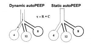 Hình 5. Cơ sở lý luận sinh lý đằng sau các khái niệm về áp lực dương cuối thì thở ra nội sinh tĩnh và động (PEEP nội sinh) trong thở máy. Với auto- PEEP động, lưu lượng hít vào bắt đầu khi áp lực đường thở lớn hơn áp lực phế nang cuối ở vùng phổi có hằng số thời gian ngắn hơn (auto-PEEP = 4 cm H2O). Với auto-PEEP tĩnh, trong quá trình tắc nghẽn đường thở cuối thì thở ra, auto-PEEP tương ứng với giá trị trung bình của tất cả các vùng phổi (auto-PEEP = 8 cm H2O). τ = hằng số thời gian. R = trở kháng. C = độ giãn nở.