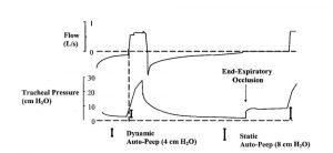 Hình 6. Các dạng sóng áp lực lưu lượng và khí quản, cho thấy việc xác định PEEP nội sinh khi bắt đầu hít vào và PEEP tự động tĩnh sau khi tắc nghẽn đường thở cuối thì thở ra kéo dài.