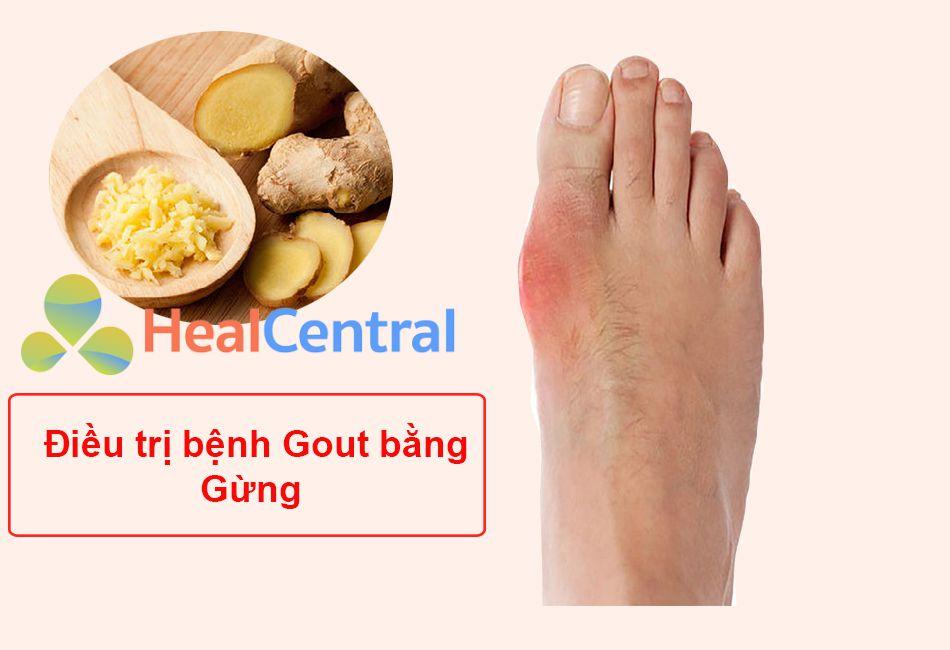 Bài thuốc Nam chữa bệnh Gout từ Gừng
