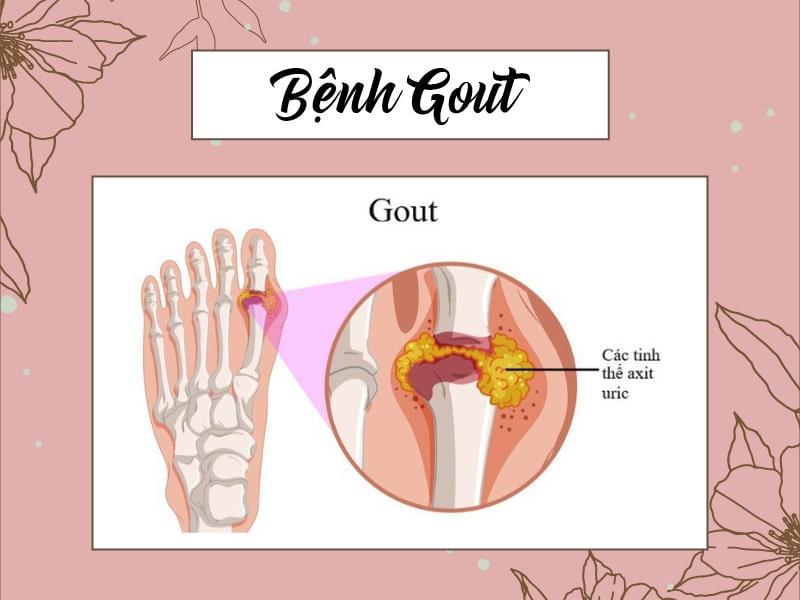Bệnh gout là bệnh viêm khớp do sự lắng đọng của các tinh thể muối urat trong dịch khớp và các mô xung quanh