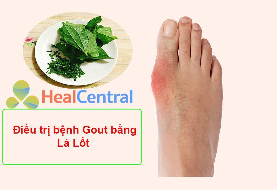Điều trị Gout bằng lá lốt