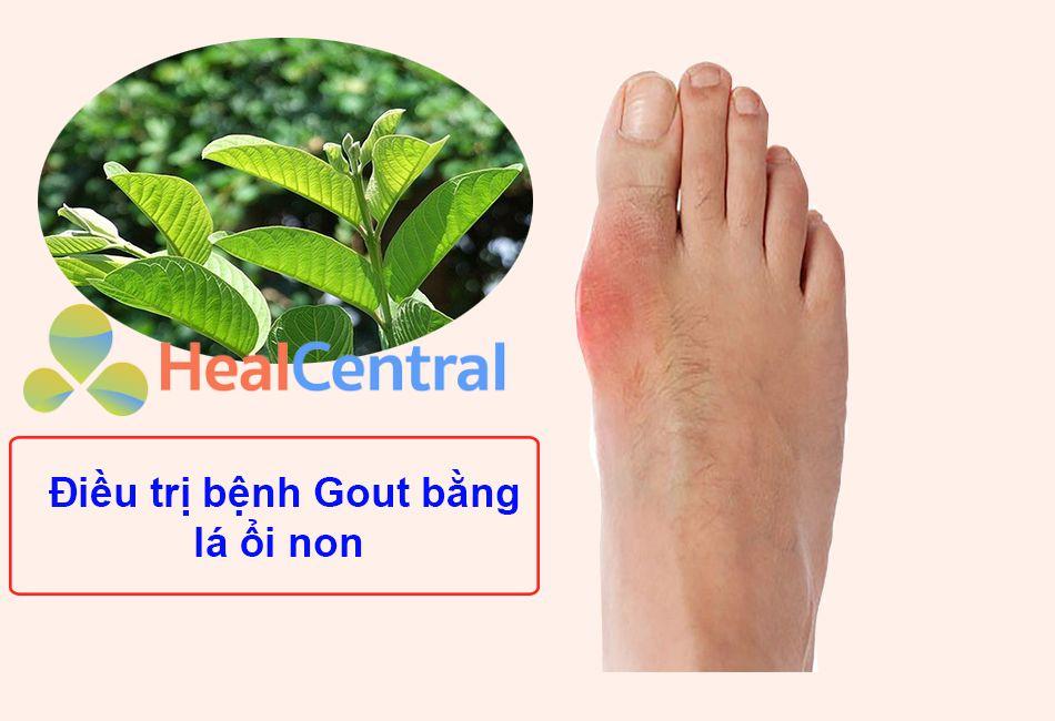 Lá ổi non – vị thuốc Nam chữa bệnh Gout hiệu quả