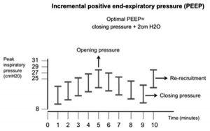 Hình 1: Giao thức nghiên cứu. Mỗi thanh dọc biểu thị một bước giao thức có thời lượng 1 phút ở cuối, dữ liệu được lấy.