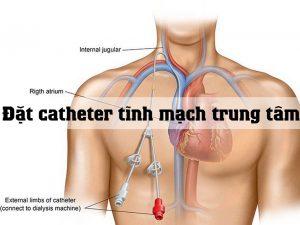 Đặt catheter tĩnh mạch trung tâm