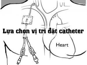 Lựa chọn vị trí đặt catheter