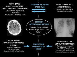 Hình 1 Tương tác sinh lý bệnh tiềm năng giữa tổn thương não nghiêm trọng và tổn thương phổi nghiêm trọng, và nhu cầu điều trị mâu thuẫn của họ.