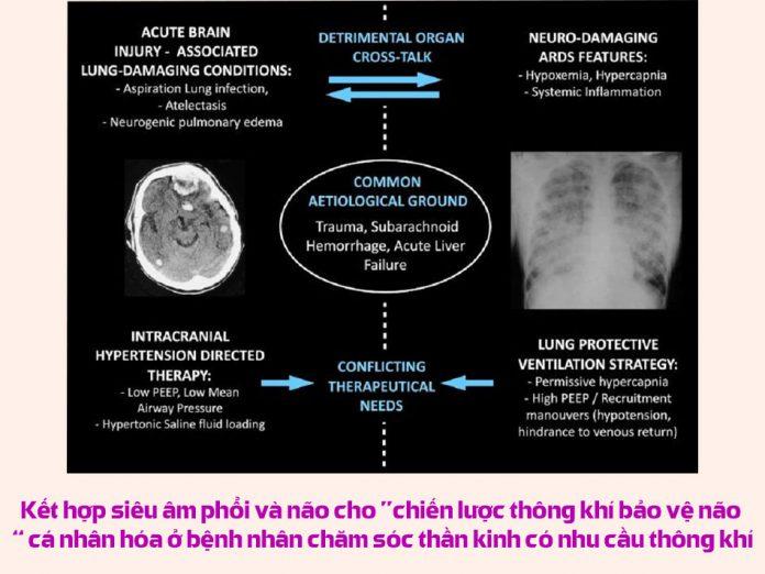 """Kết hợp siêu âm phổi và não cho """"chiến lược thông khí bảo vệ não"""" cá nhân hóa ở bệnh nhân chăm sóc thần kinh có nhu cầu thông khí"""
